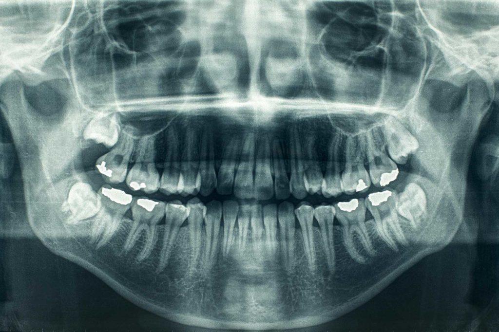 x_rayos_medicina_oral_semo-1024x682